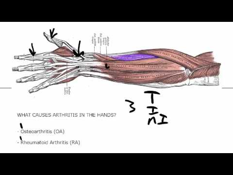 Arthritis In Hands - Critical Basics To Know If You Want To Be Pain Free