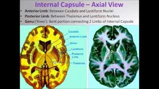Brain Internal Capsule Demonstration Video -  Sanjoy Sanyal