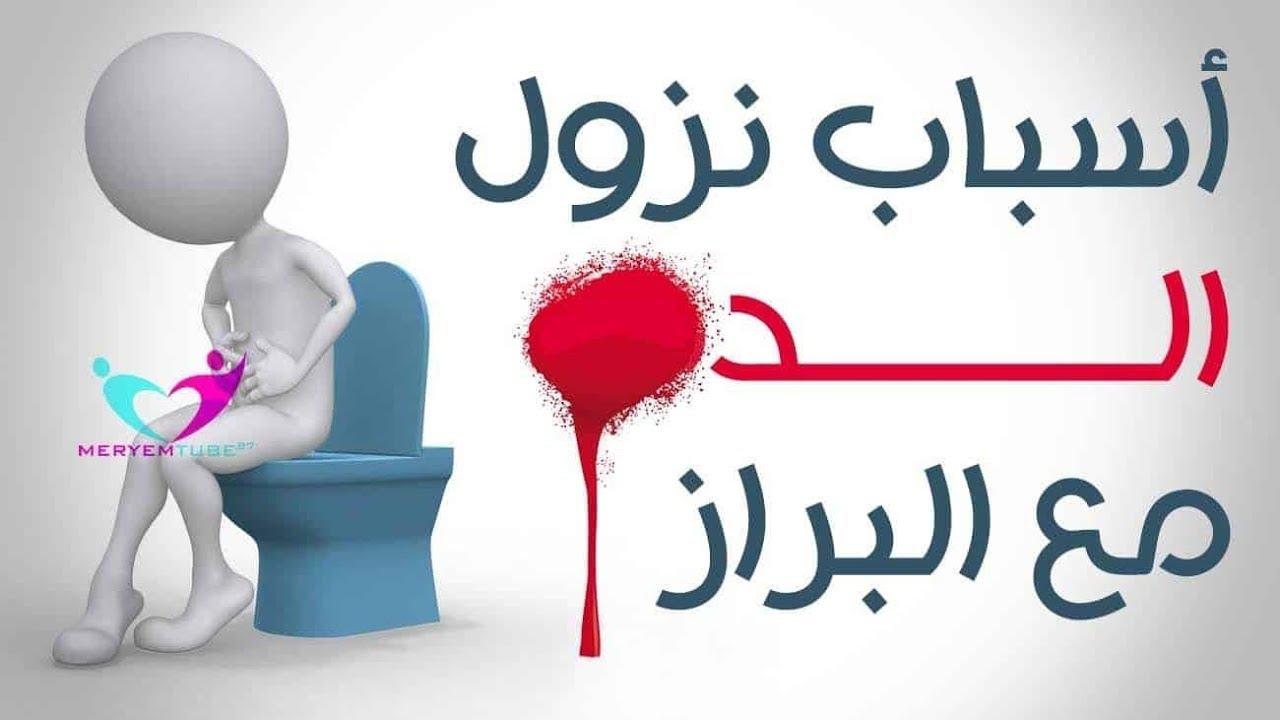اسباب خروج دم مع البراز دون الم وكيفية علاجه Youtube