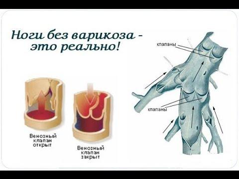 Варикоз вен на ногах лечение народные средства симптомы причины