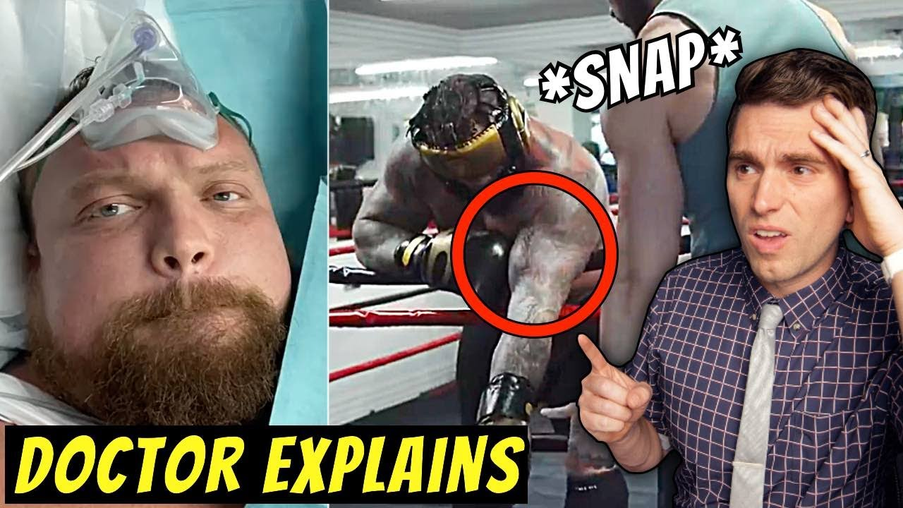 Biceps *SNAP* Doctor Reacts to Eddie Hall RARE Biceps Injury and Explains Video