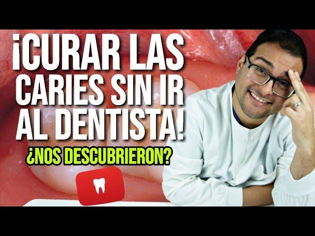 Quitar Las Caries Sin Ir Al Dentista Elimina Tus Dudas Explicación Definitiva 50 Youtube