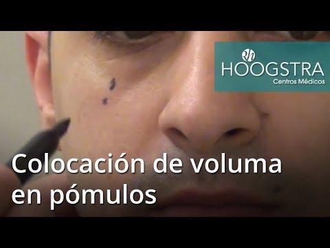 Colocación de voluma en pómulos (18007)