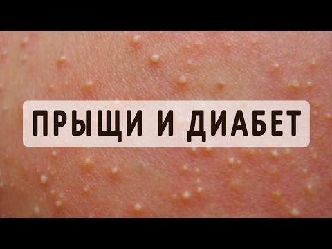 Гормональный сбой: симптомы проявления и методы лечения
