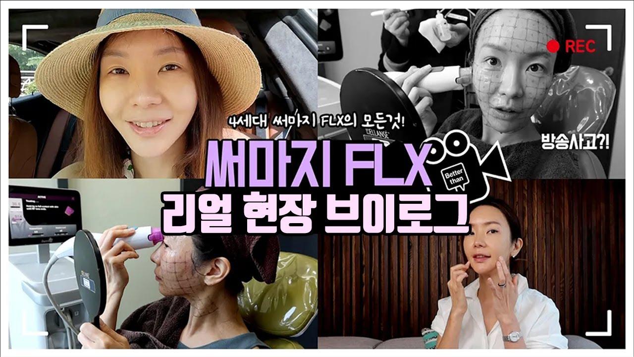 극강리프팅 4세대 써마지FLX 리얼후기 브이로그♥(&방송사고 극복기)