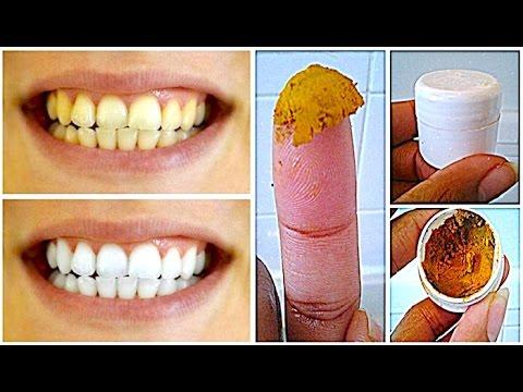 Clarear Os Dentes Com Acafrao E Oleo De Coco Resultado No 1º Dia