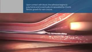 Schonende Behandlung von Krampfadern mit dem VenaSeal Verfahren(Krampfadern sind das wenig schöne äußere Anzeichen eines Venenleidens, welches selbst bei jungen Menschen Veränderungen an den Beinen hervorrufen ..., 2015-12-01T10:14:37.000Z)