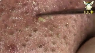 Blackheads, Whiteheads Extraction On Face Cystic Acne Treatment 81647!