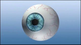 Vancouver Laser Eye Surgery - #1 Lasik & PRK in Vancouver BC