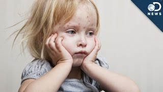 Should You Worry About Measles?