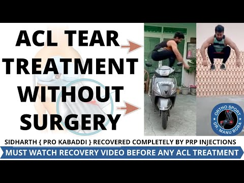 ACL TEAR RECOVERY WITHOUT SURGERY, ACL TREATMENT, ACL RECOVERY, ACL REHAB EXERCISES, ACL INJURY
