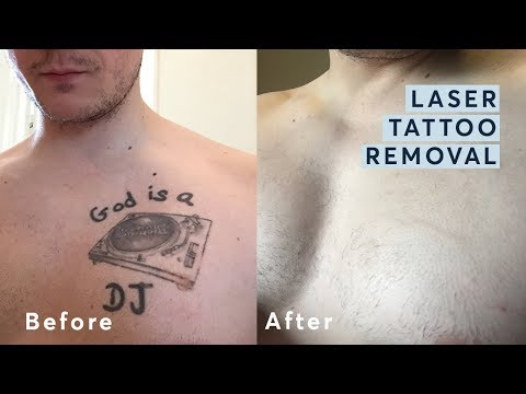 Laser Tattoo Removal - Before and After through all the stages