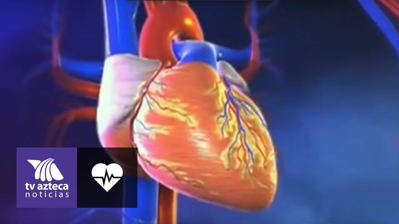 causas de un infarto cardiaco