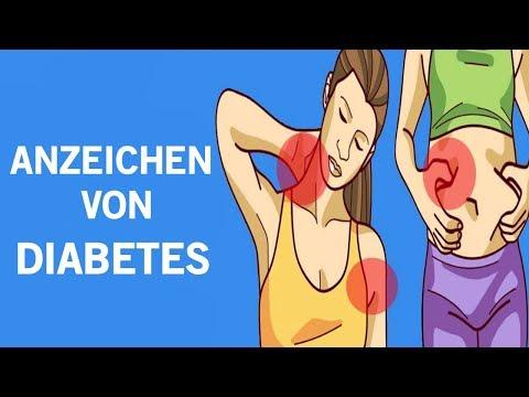 Wenn Du Eines Dieser Symptome Hast, Kann Dies Der Beginn Von Diabetes Sein Und Du Weißt Es Nicht!