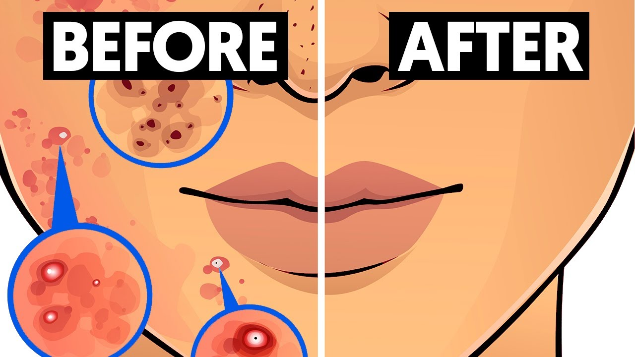 This ingredient will get rid of face acne
