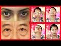 Best 5 Remedies for Puffy eyes/dark circles/eye bags/swollen eyelids (with demo)