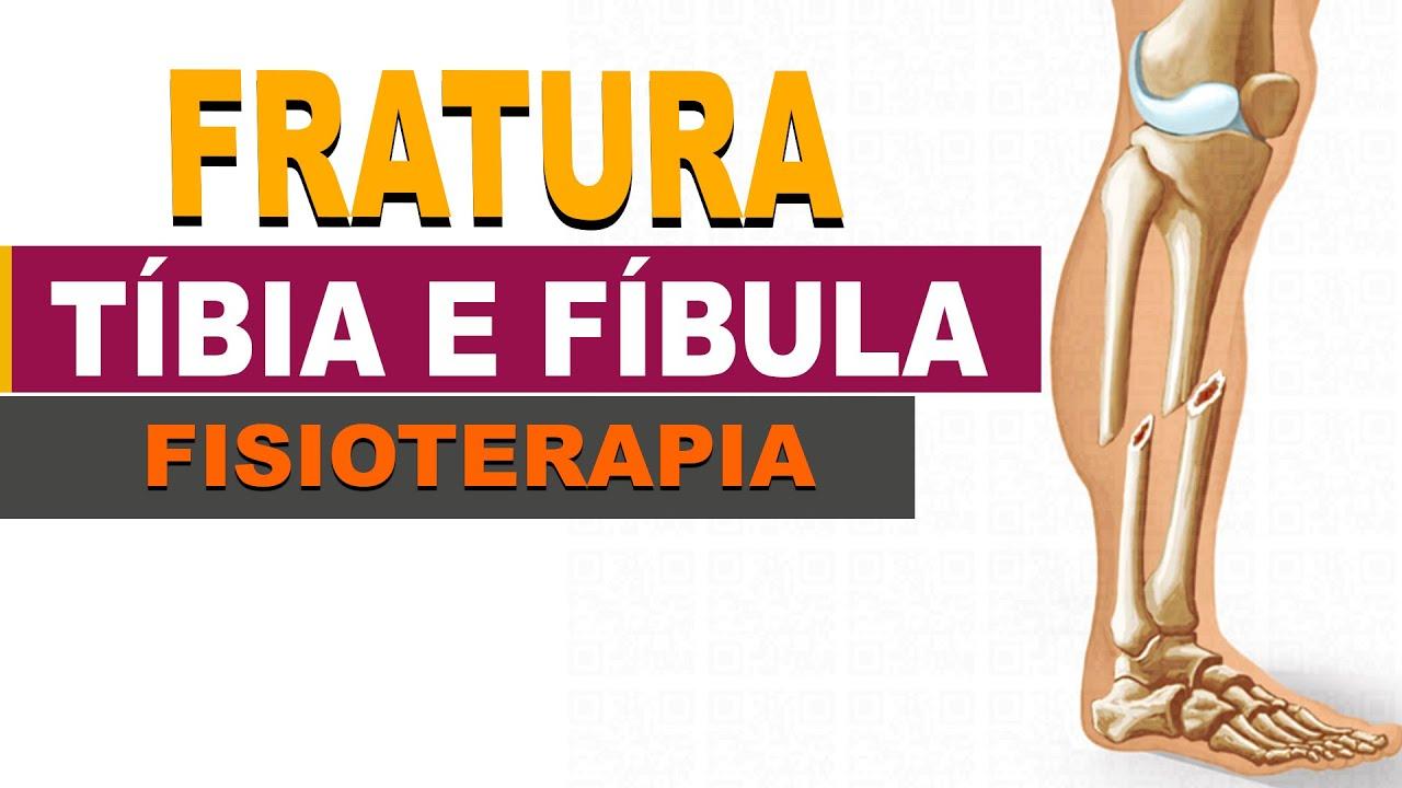 Fratura de Tíbia e Fíbula da Anatomia a Recuperação total