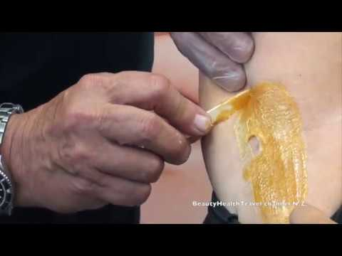 How to Wax Underarms with beeswax