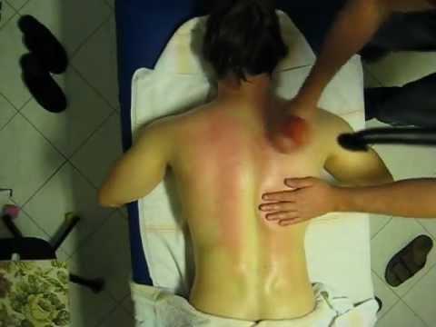 massage schr pfen r ckenmassage d ren r ckenschmerzen verspannungen strange massage youtube. Black Bedroom Furniture Sets. Home Design Ideas