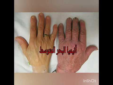 سلسلة الأنيميا(فقر الدم)/ 2 - أنيميا البحر المتوسط