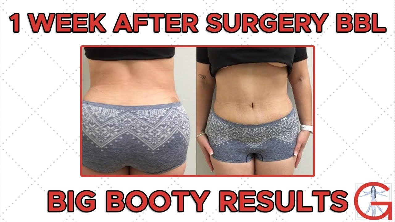 BBL Before and After | Dr Michael Gartner by Dr  Michael Gartner FACS  Plastic Surgeon
