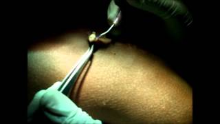 Laser Surgery for Wart