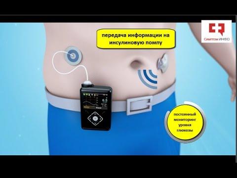 Инсулиновая помпа при сахарном диабете: устройство, принцип работы и профилактики гипогликемии