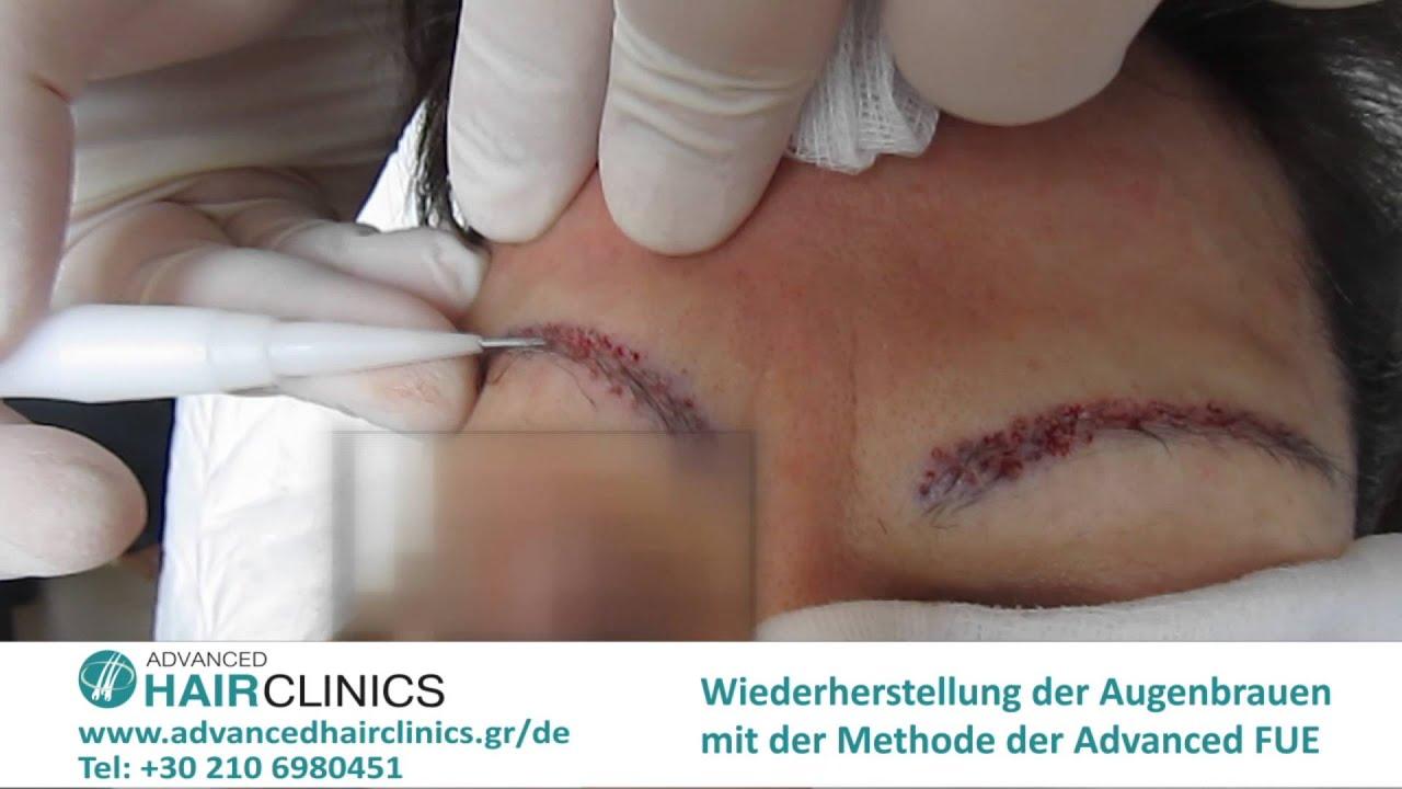 augenbrauentransplantation mit der methode der advanced fue youtube