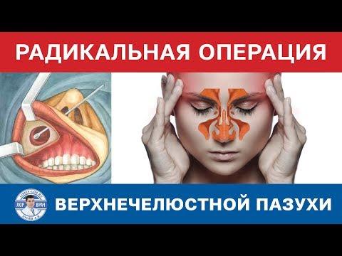 Удаление полипов в носу - цена от 6000 рублей