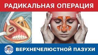 Радикальная операция на верхнечелюстной пазухе(Радикальная операция на верхнечелюстной пазухе http://www.lunev-lor.ru., 2014-08-25T18:45:00.000Z)
