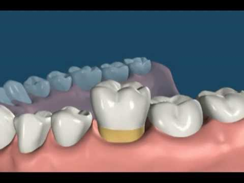 Molar Extraction Implant Process Youtube