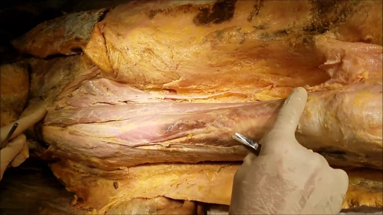Thigh Anterior Femoral Triangle Adductor Canal Surgical Dissection ...