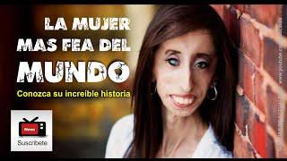 Ella es la mujer más fea del mundo / Lizzie Velásquez y su conmovedora historia
