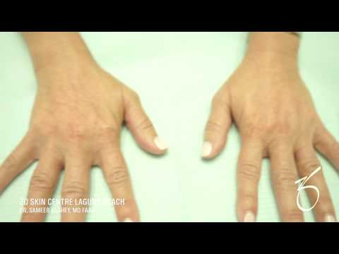 Hand Rejuvenation Using RADIESSE® at ZO Skin Centre