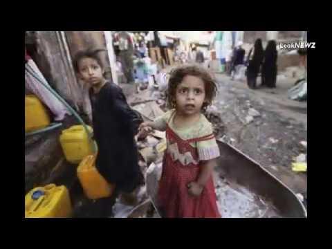 Hunger yemen children Yemen war Yemen Famine --
