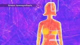 Lassen Medical - 3D Mammography In Northern California