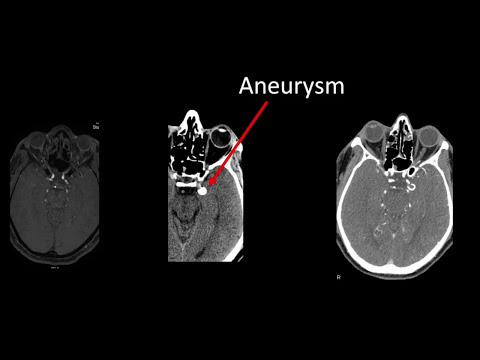 PCOM Aneurysm Clipping Video - Brigham and Women's Hospital
