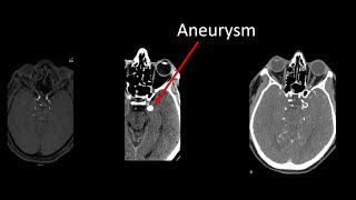 PCOM Aneurysm Clipping Video - Brigham and Women's Hospital