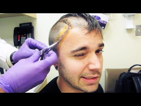PAINFUL STAPLE REMOVAL (9.30.13 - Day 1614)
