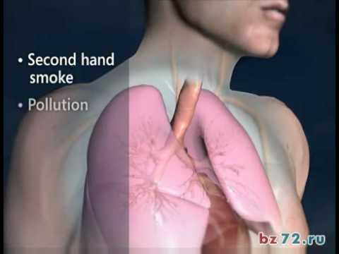 Бронхиальная астма – что это такое