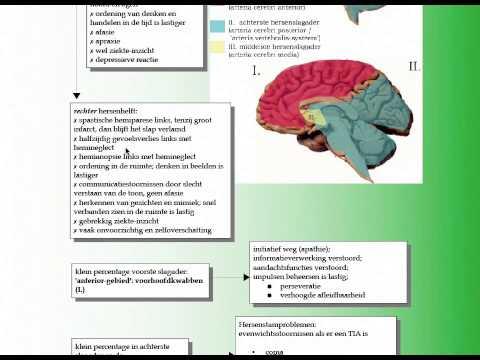 22 2 CVA symptomen