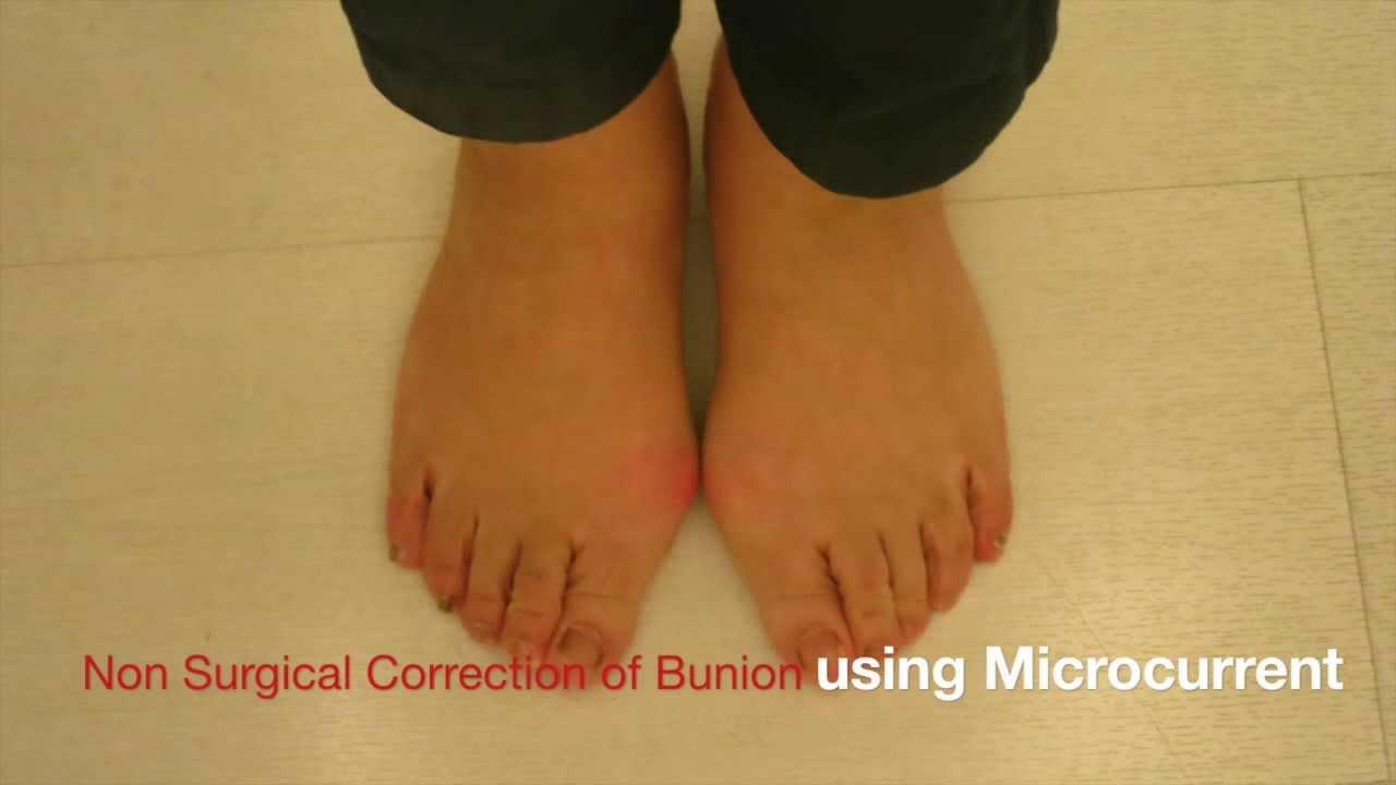 Non Surgical Correction Of Bunion 2014