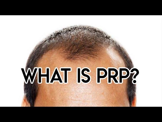 PRP Microneedling