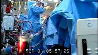 OPERATING ROOM SURGERY