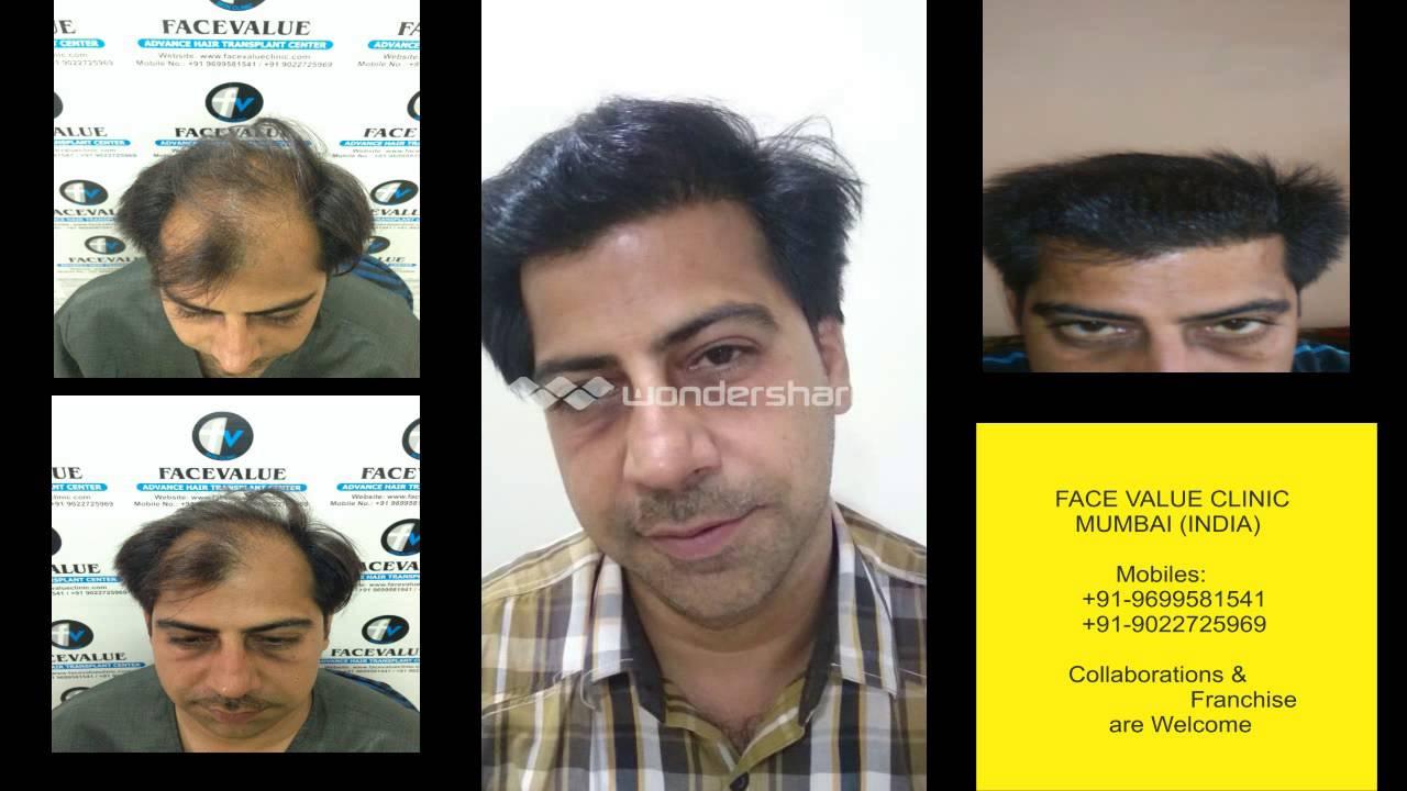 Affordable Fue Fut Hair Transplant Mumbai India Youtube