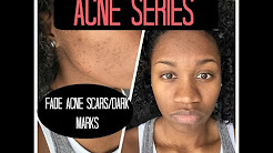 Acne Series | Fading Dark Marks/ Acne Scars & Skin Care Regimen | EiffelCurls
