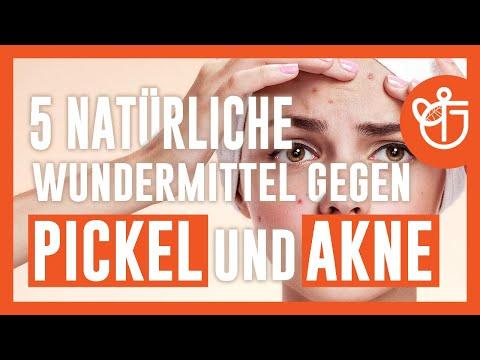 5-natürliche-wundermittel-gegen-pickel-und-akne
