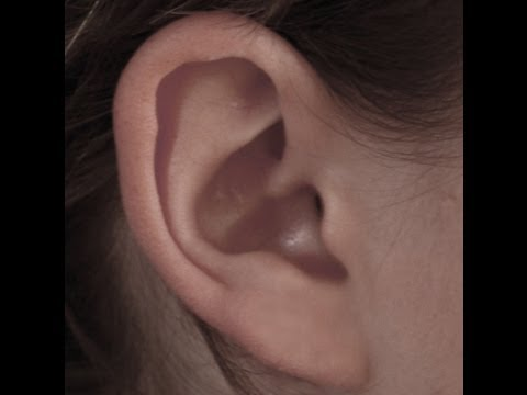 """Sudden Hearing loss - Expert Dr Greuel M.D. """"Cause and Cure"""""""