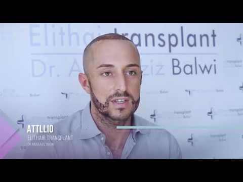 Trapianto di capelli e barba Istanbul - Elithairtransplant