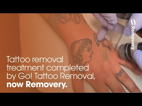 Laser Tattoo Removal On Hand And Finger [4K] - YouTube